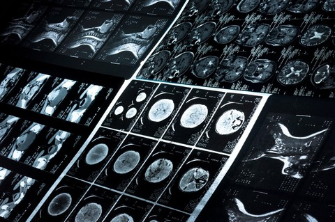 רשלנות רפואית בדלקת קרום המוח