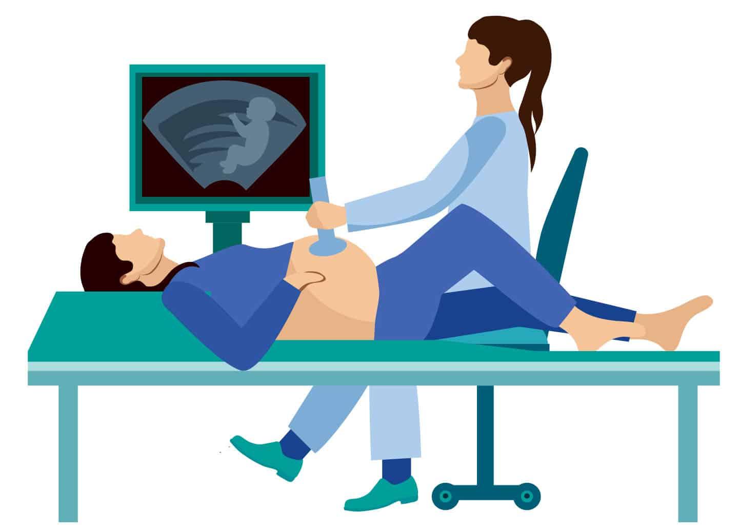איור של אחות עושה אולטרסאונד לאישה בהריון מתקדם